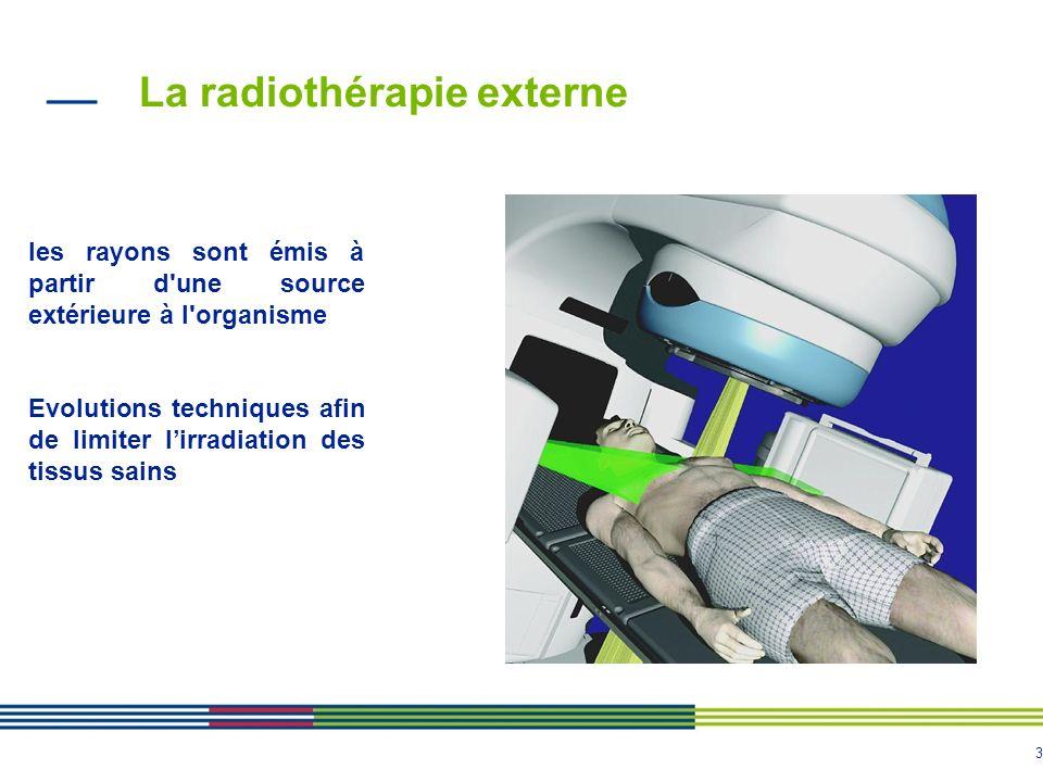 La radiothérapie externe