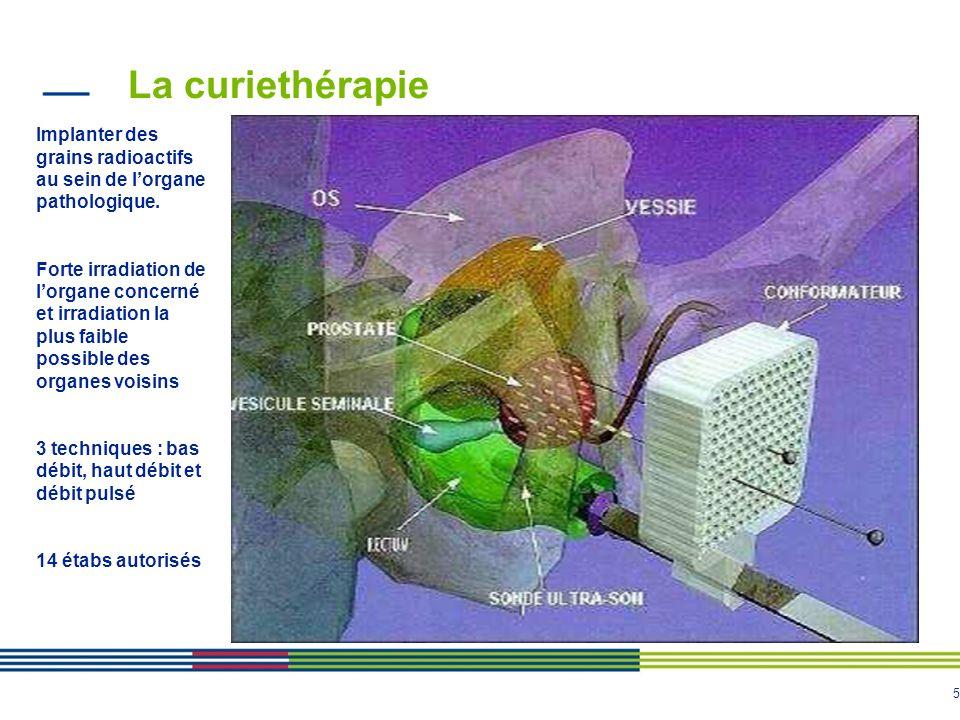 La curiethérapie Implanter des grains radioactifs au sein de l'organe pathologique.