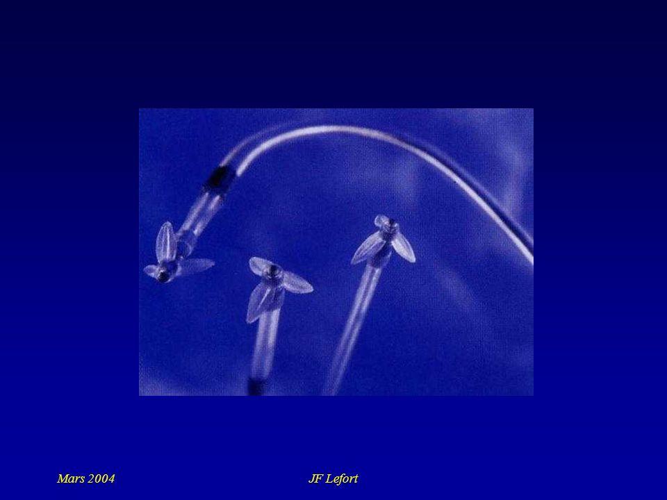 Mars 2004 JF Lefort