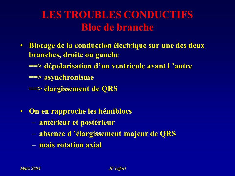 LES TROUBLES CONDUCTIFS Bloc de branche