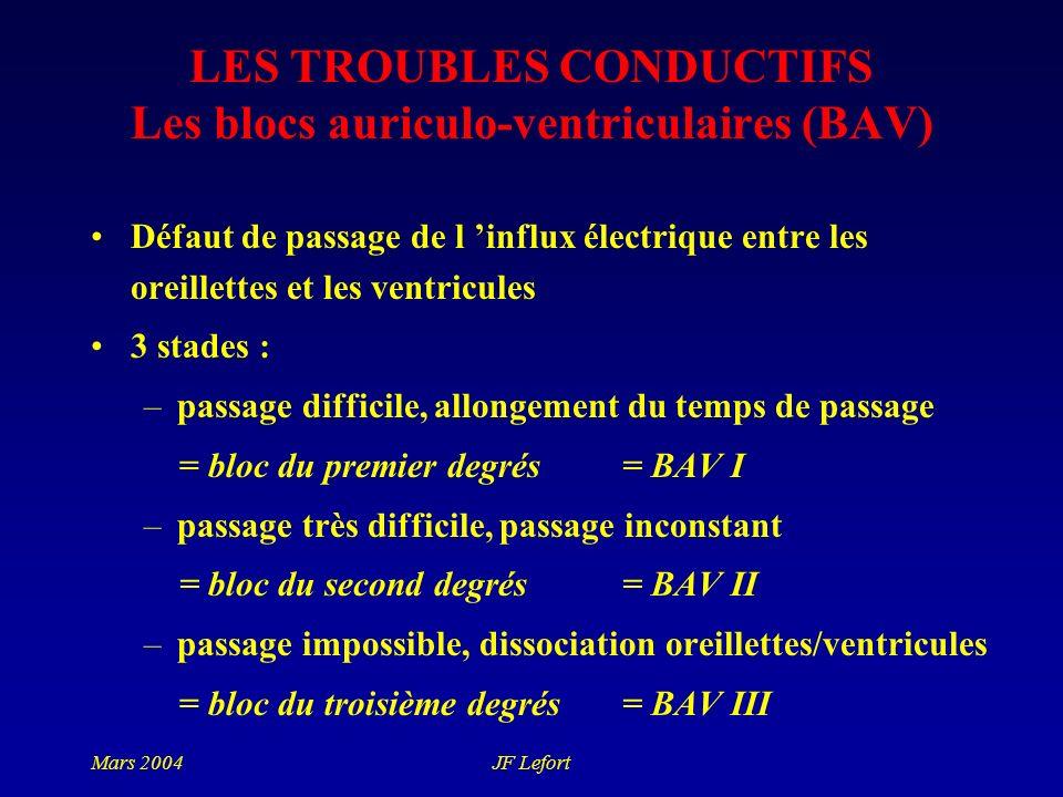 LES TROUBLES CONDUCTIFS Les blocs auriculo-ventriculaires (BAV)