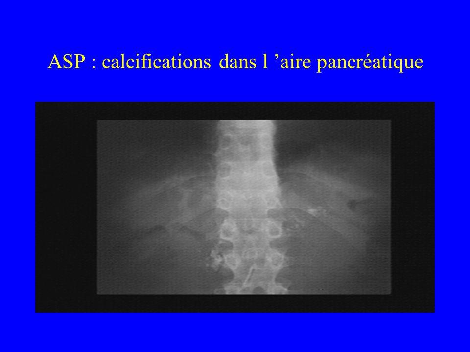 ASP : calcifications dans l 'aire pancréatique