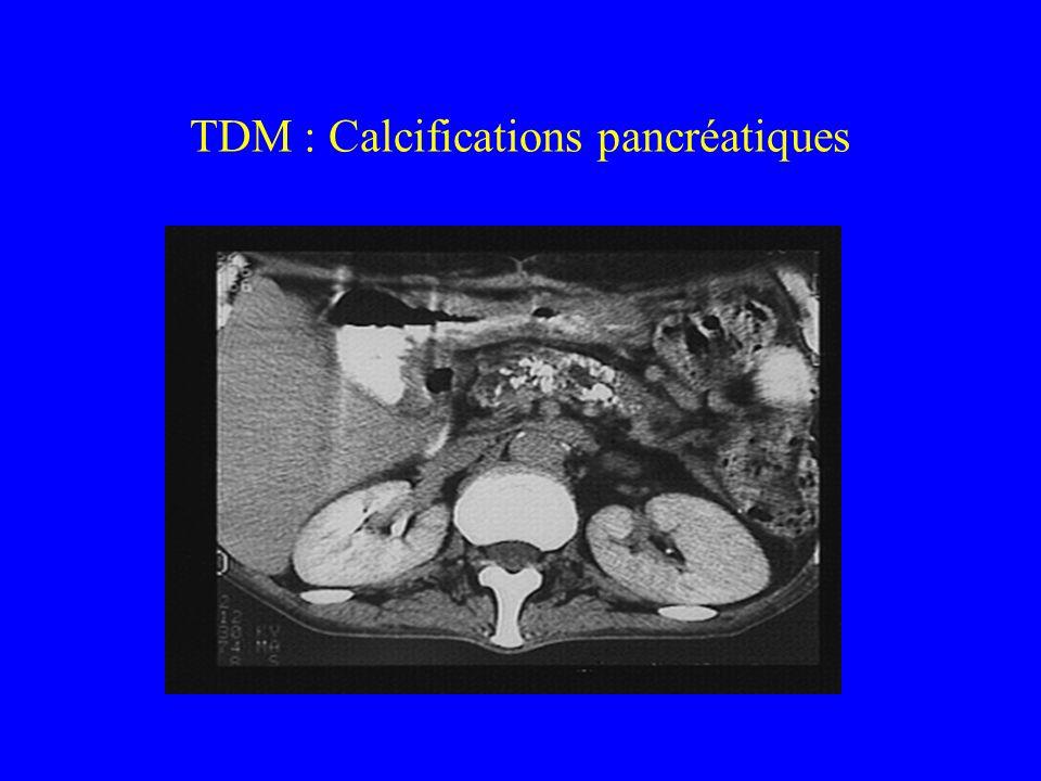 TDM : Calcifications pancréatiques