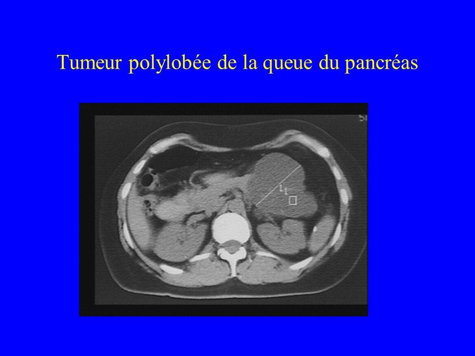 Tumeur polylobée de la queue du pancréas