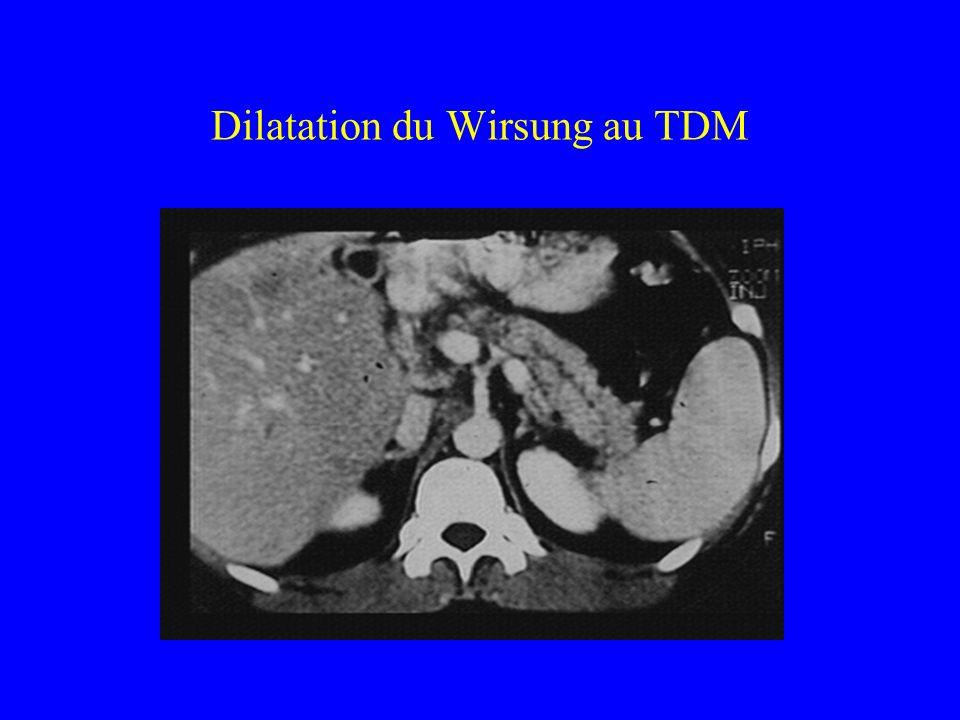 Dilatation du Wirsung au TDM