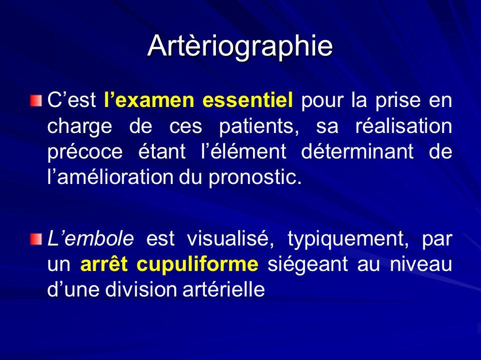 Artèriographie