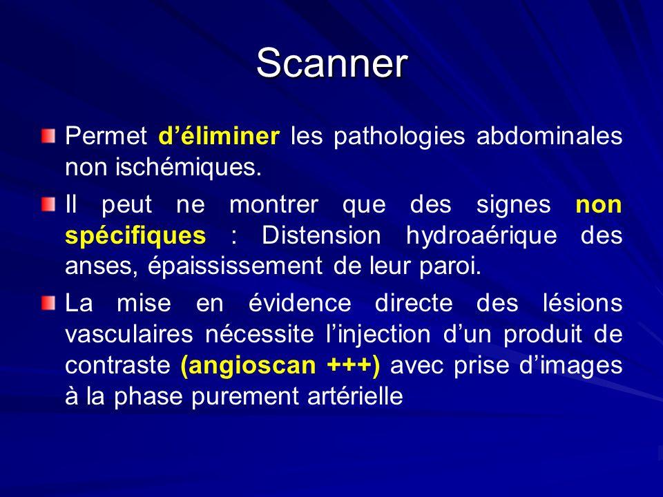 Scanner Permet d'éliminer les pathologies abdominales non ischémiques.