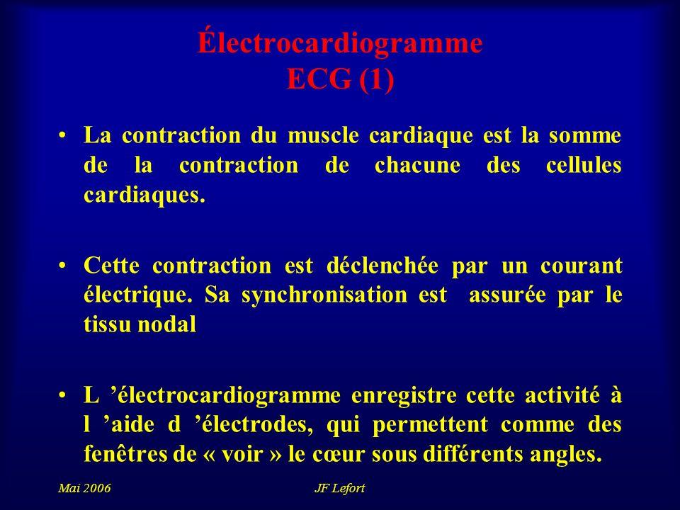 Électrocardiogramme ECG (1)