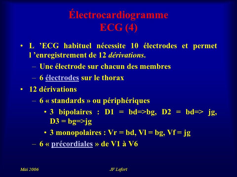Électrocardiogramme ECG (4)