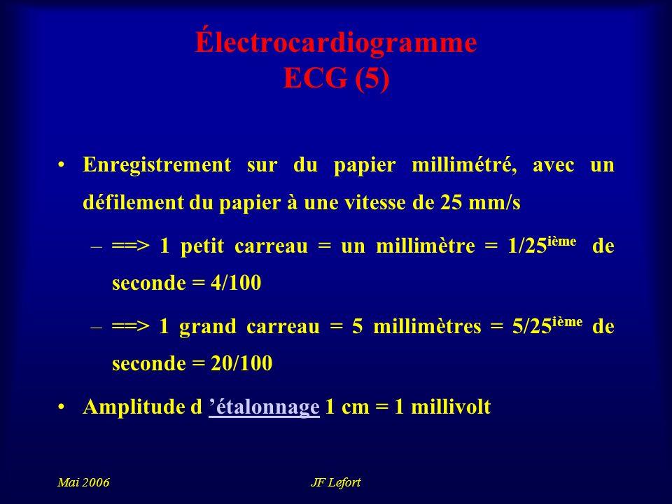 Électrocardiogramme ECG (5)