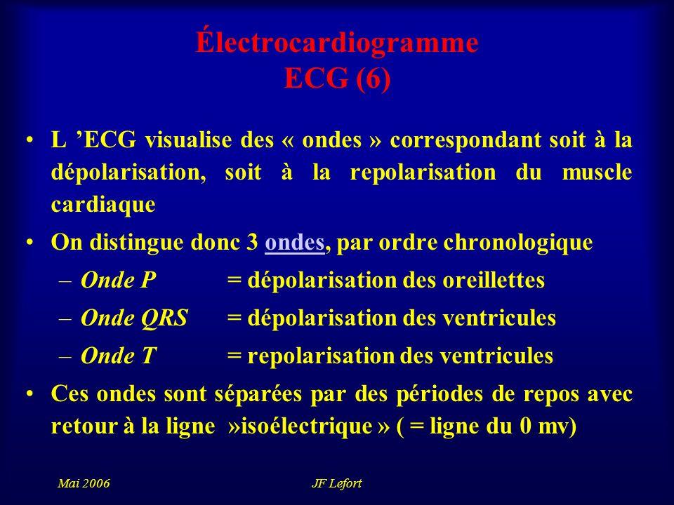 Électrocardiogramme ECG (6)