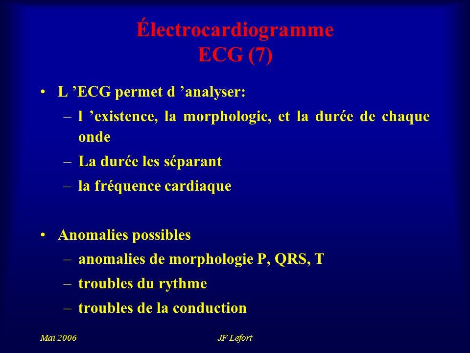 Électrocardiogramme ECG (7)