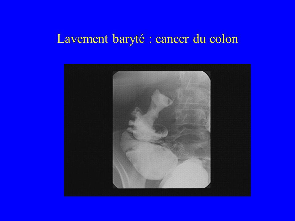 Lavement baryté : cancer du colon