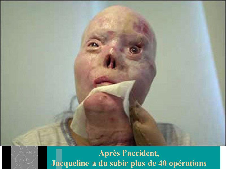 Jacqueline a du subir plus de 40 opérations