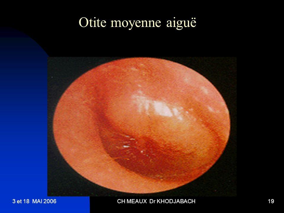 Otite moyenne aiguë 3 et 18 MAI 2006 CH MEAUX Dr KHODJABACH