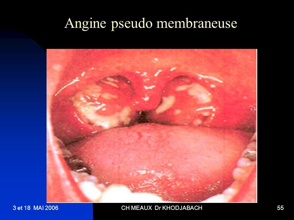 Angine pseudo membraneuse