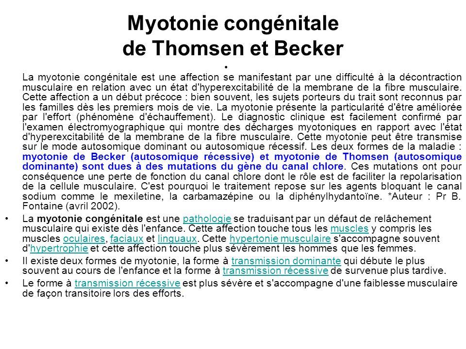 Myotonie congénitale de Thomsen et Becker