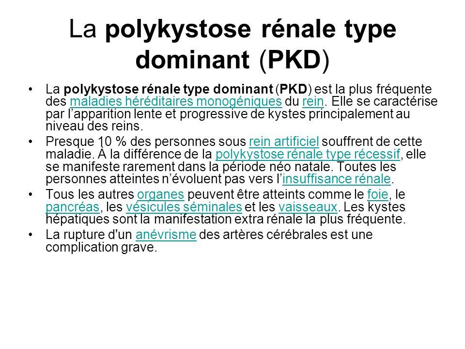 La polykystose rénale type dominant (PKD)