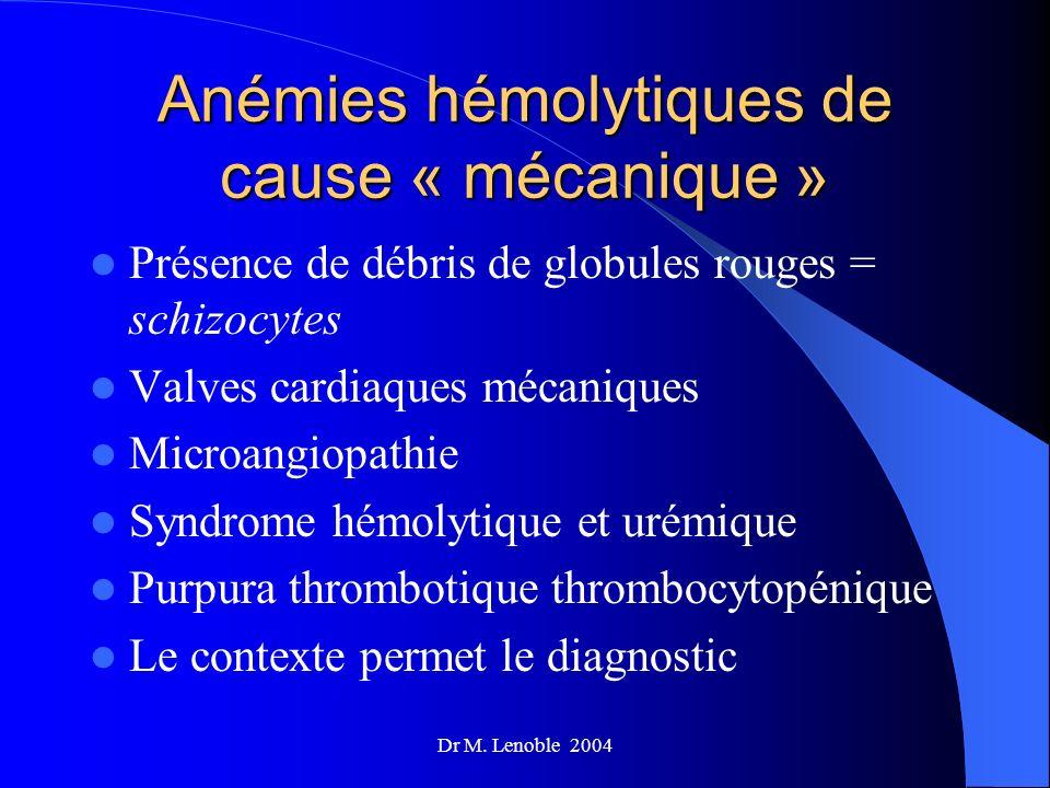 Anémies hémolytiques de cause « mécanique »
