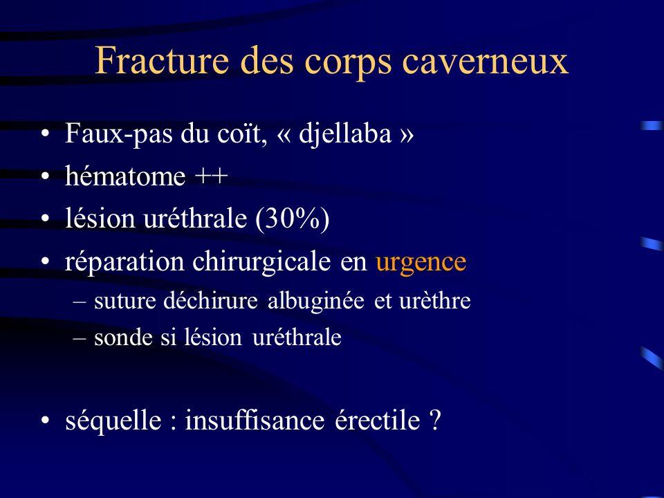 Fracture des corps caverneux