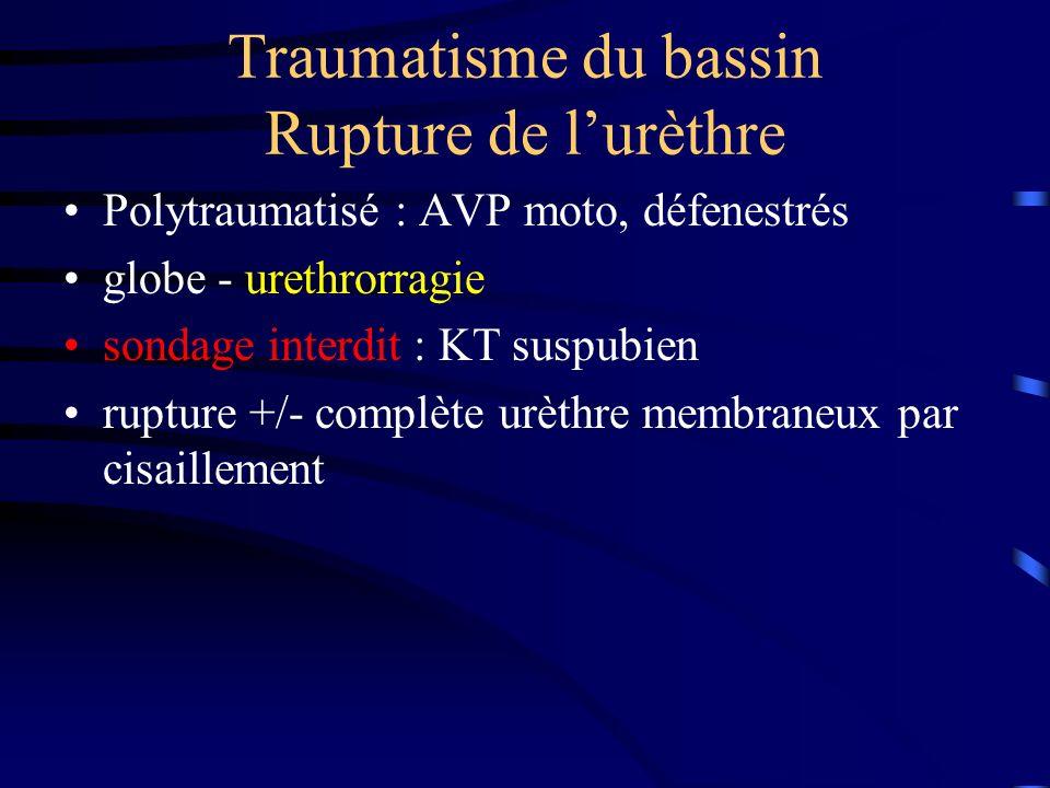 Traumatisme du bassin Rupture de l'urèthre