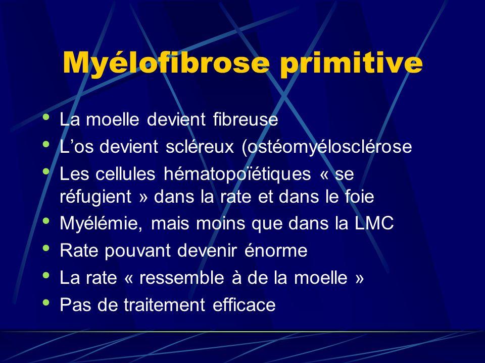 Myélofibrose primitive