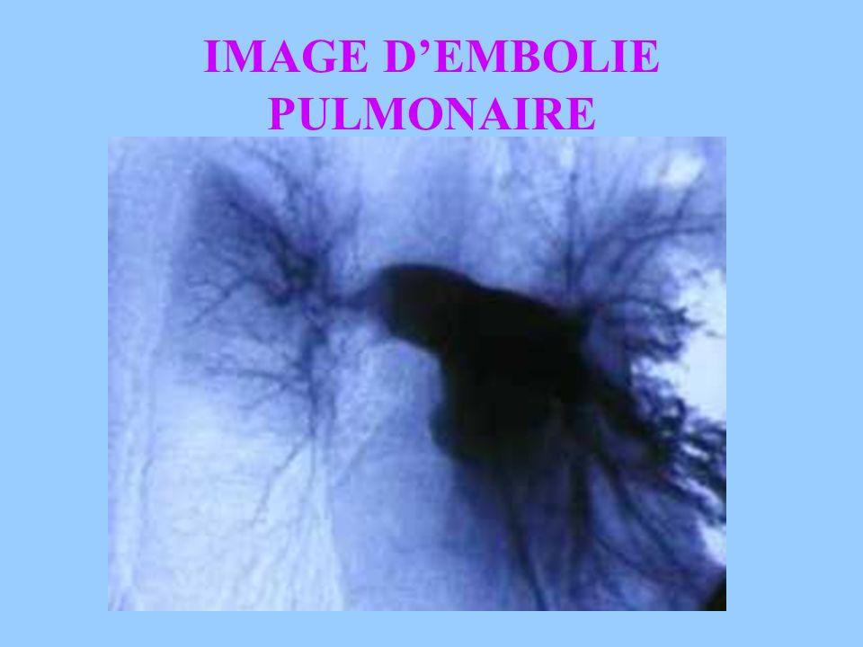 IMAGE D'EMBOLIE PULMONAIRE