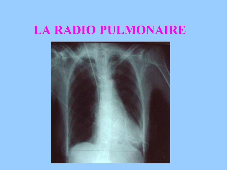 LA RADIO PULMONAIRE