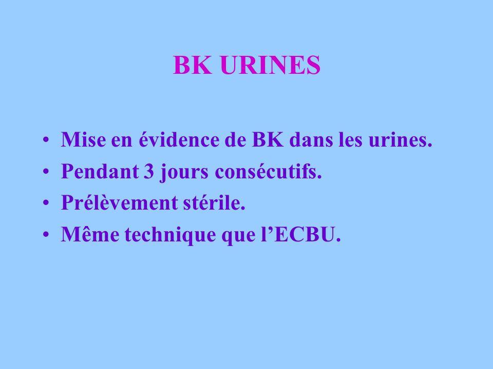 BK URINES Mise en évidence de BK dans les urines.