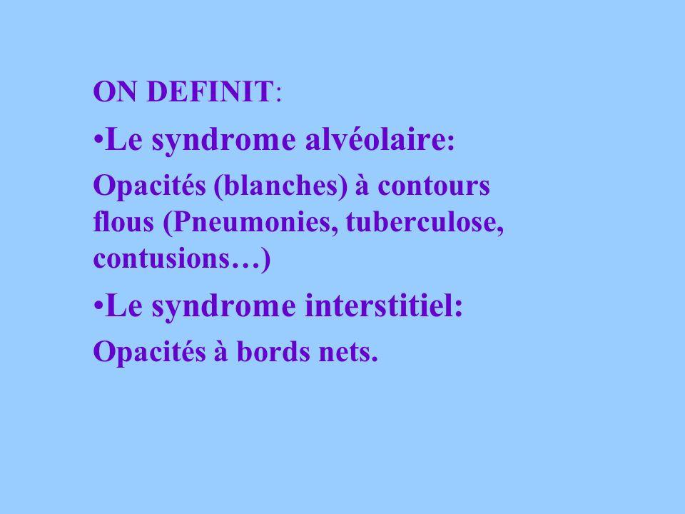 Le syndrome alvéolaire: