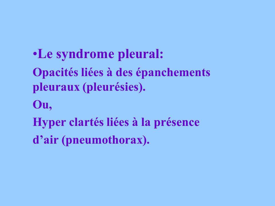 Le syndrome pleural: Opacités liées à des épanchements pleuraux (pleurésies). Ou, Hyper clartés liées à la présence.