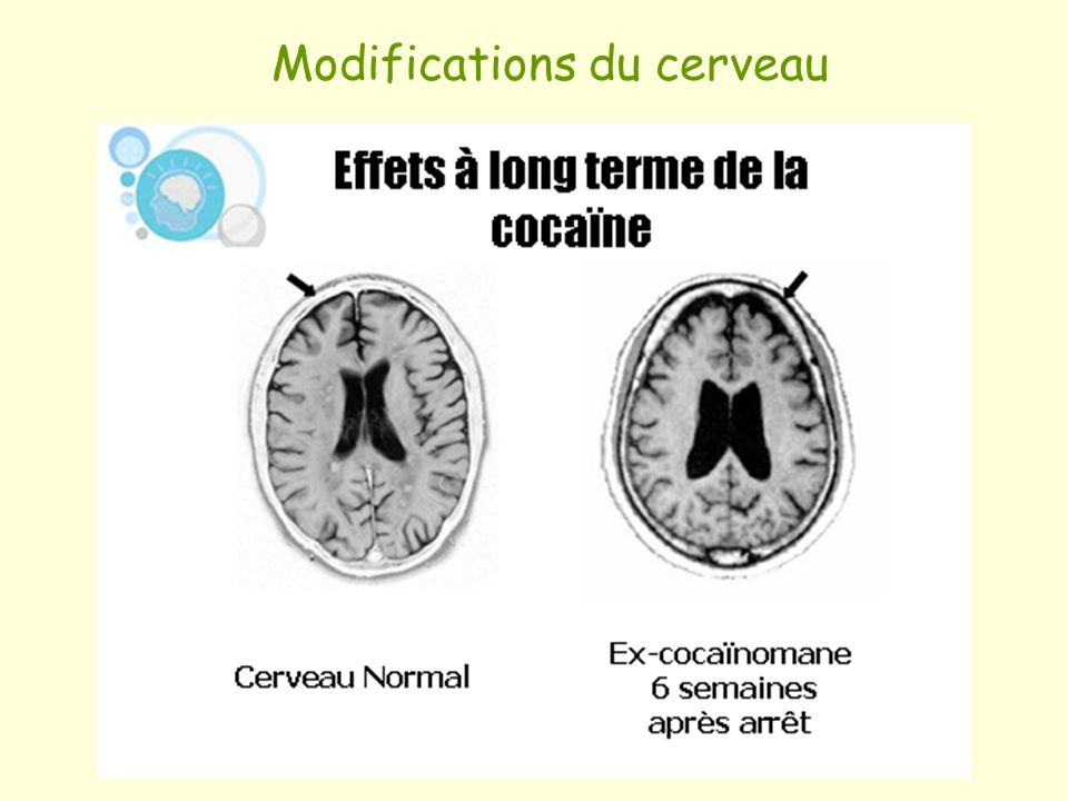 Modifications du cerveau