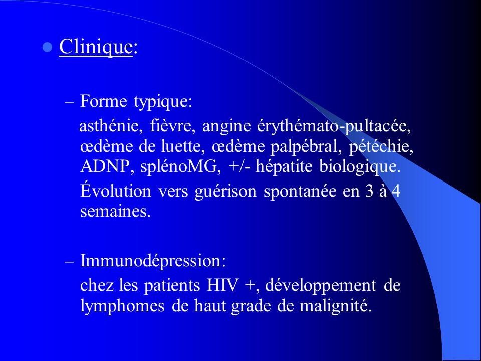 Clinique: Forme typique: