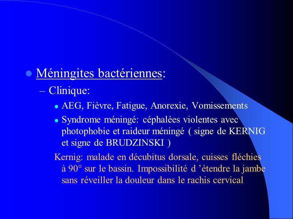 Méningites bactériennes: