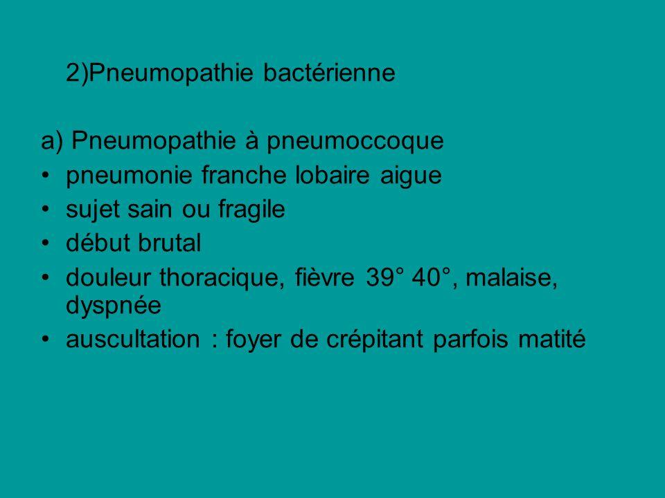 2)Pneumopathie bactérienne