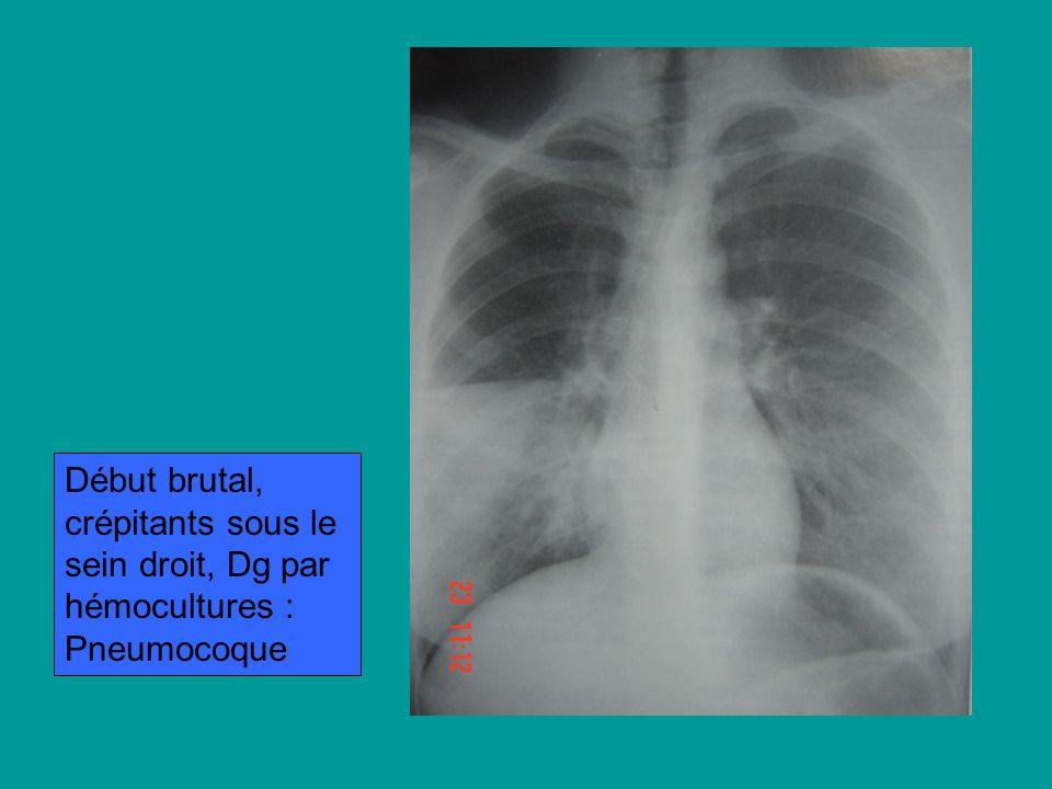 Début brutal, crépitants sous le sein droit, Dg par hémocultures : Pneumocoque