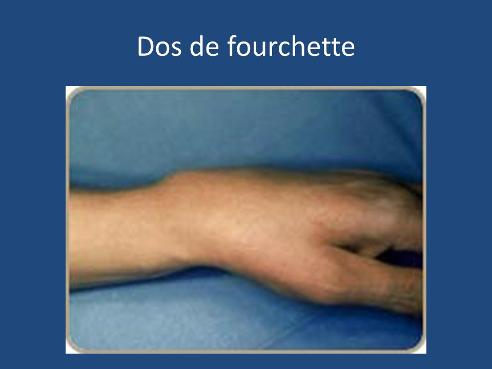 Dos de fourchette