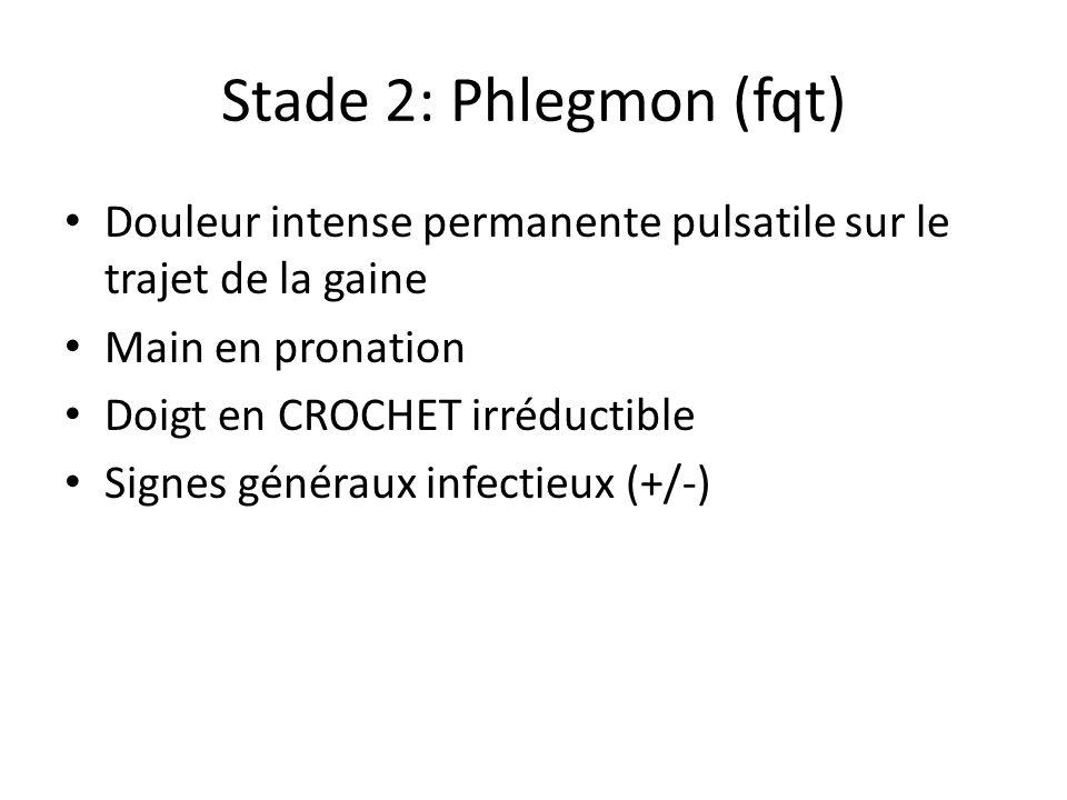 Stade 2: Phlegmon (fqt)Douleur intense permanente pulsatile sur le trajet de la gaine. Main en pronation.