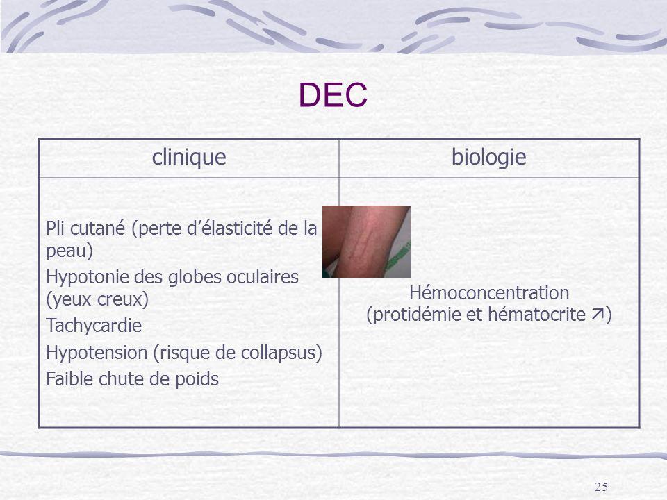 Hémoconcentration (protidémie et hématocrite )
