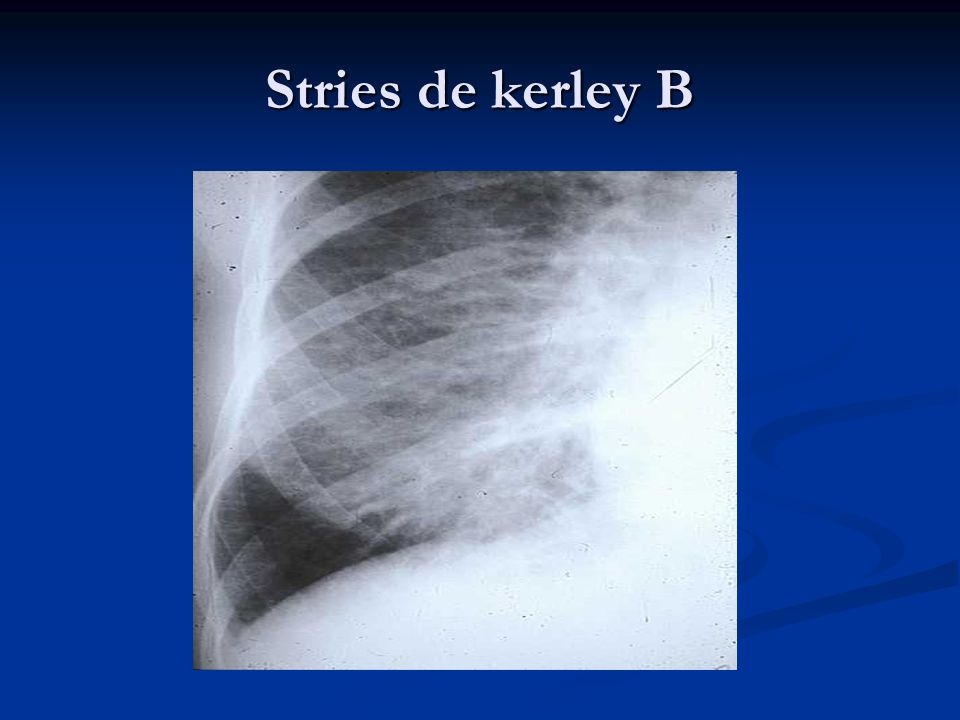 Stries de kerley B