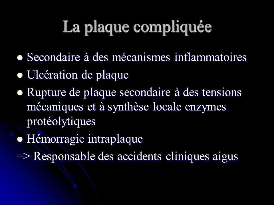La plaque compliquée Secondaire à des mécanismes inflammatoires