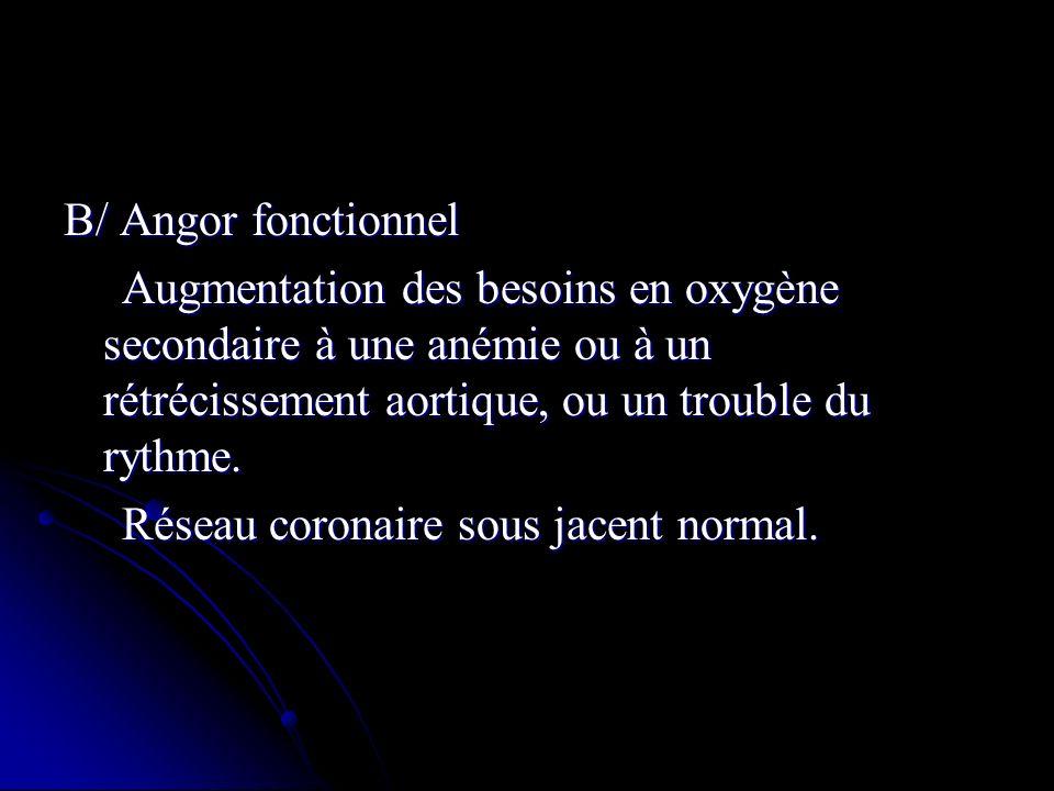 B/ Angor fonctionnel Augmentation des besoins en oxygène secondaire à une anémie ou à un rétrécissement aortique, ou un trouble du rythme.
