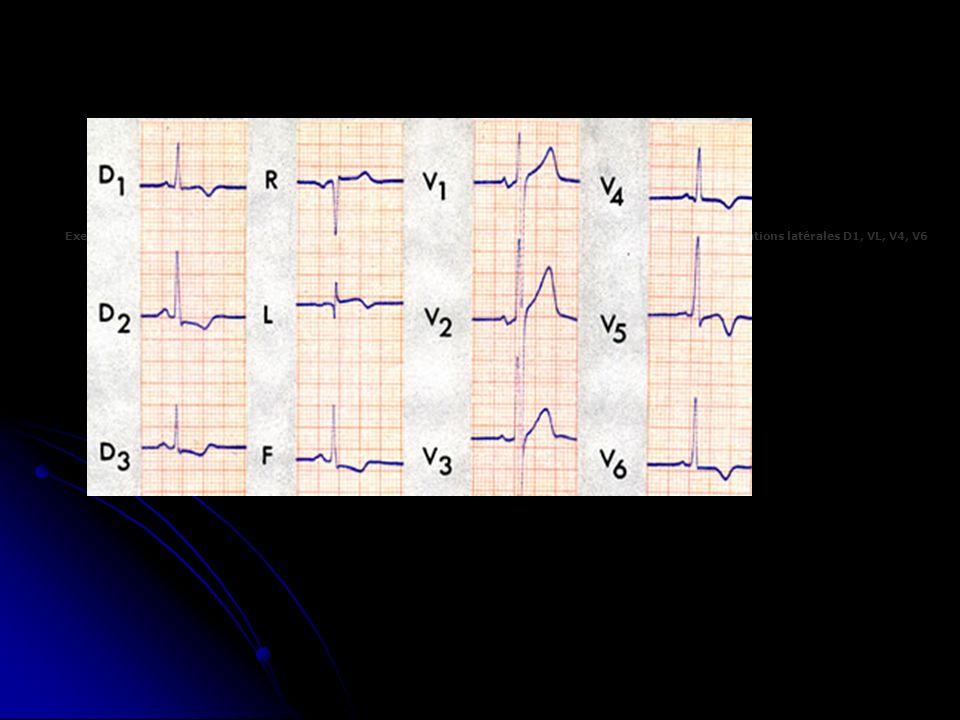 Exemple de sous-décalage du segment ST dans les dérivations inférieures et inversion de l onde T dans les dérivations latérales D1, VL, V4, V6