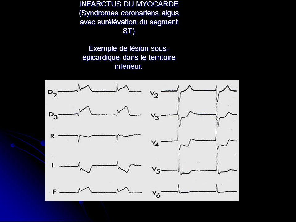 INFARCTUS DU MYOCARDE (Syndromes coronariens aigus avec surélévation du segment ST) Exemple de lésion sous-épicardique dans le territoire inférieur.