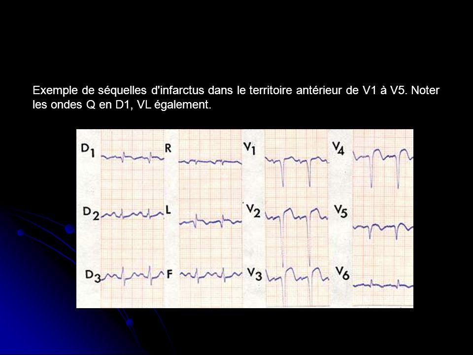 Exemple de séquelles d infarctus dans le territoire antérieur de V1 à V5.