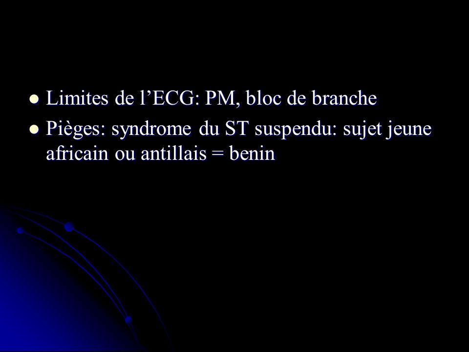 Limites de l'ECG: PM, bloc de branche