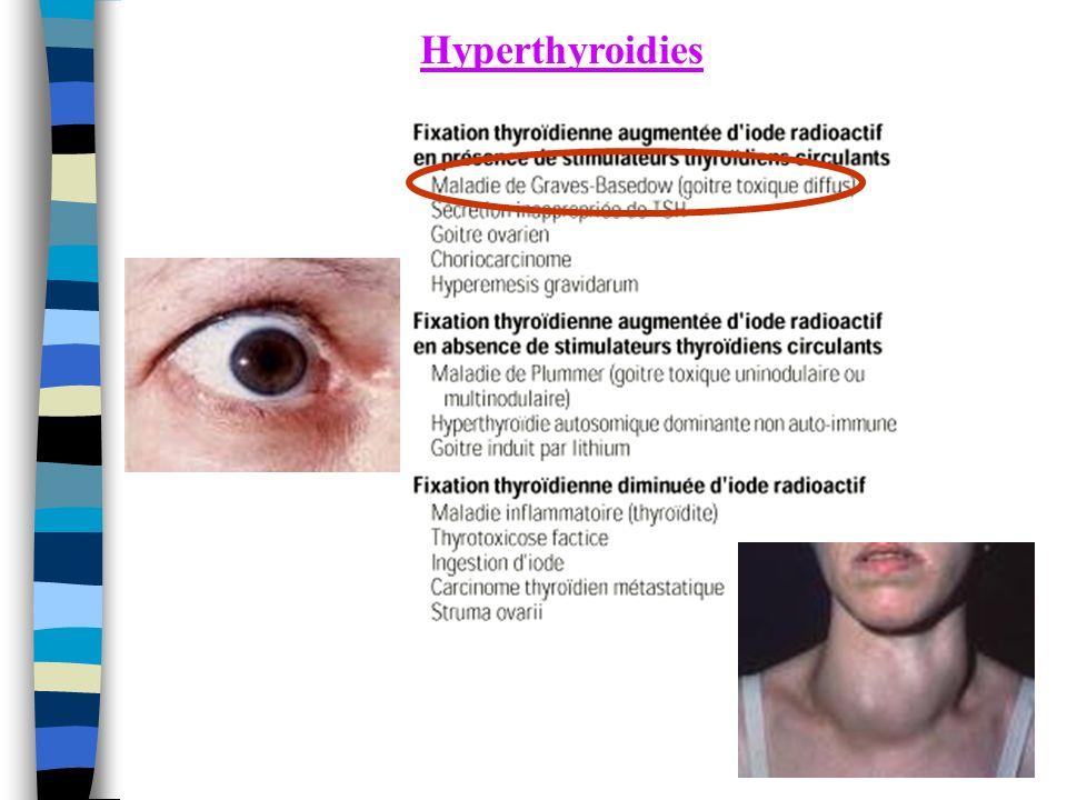 Hyperthyroidies
