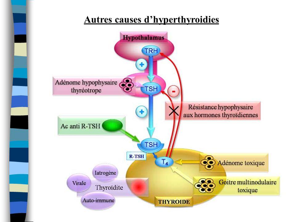 Autres causes d'hyperthyroidies