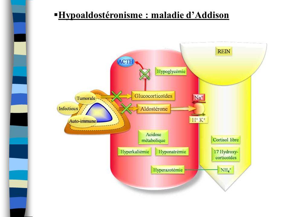 Hypoaldostéronisme : maladie d'Addison