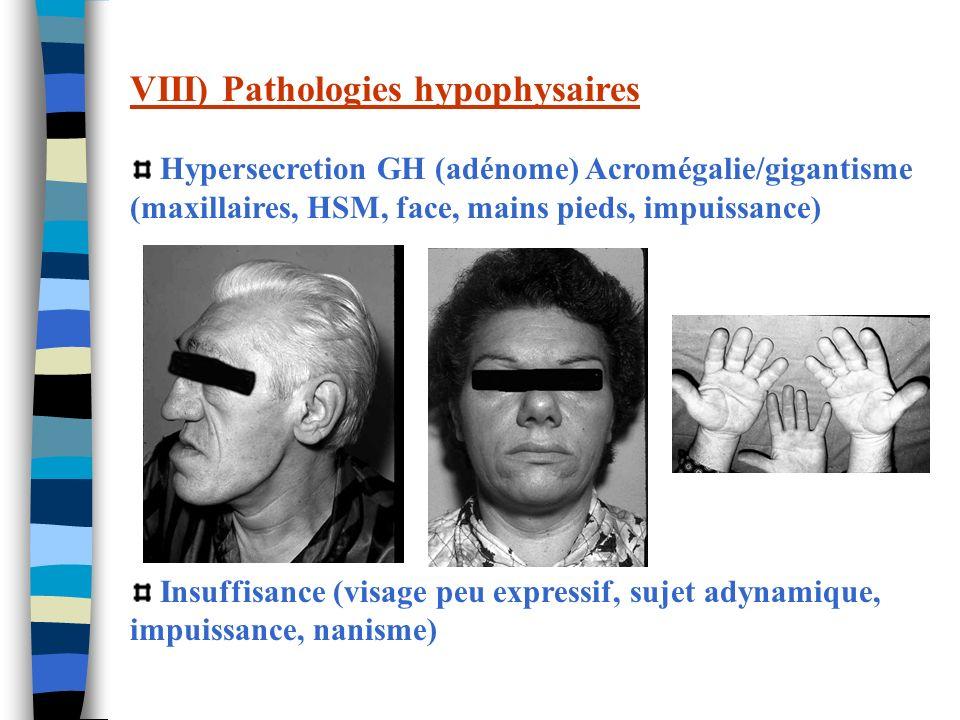 VIII) Pathologies hypophysaires